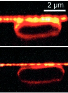 איור 3: ביצוע דימות של חיידק אשריכיה קולי בכושר הפרדה שמעולם לא הושג קודם לכן בעזרת מיקרוסקופיה אופטית