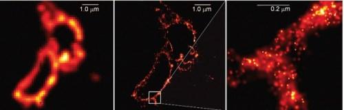 איור 5: כך נראה תא של מולקולה ביולוגית במיקרוקופ רגיל (משמאל), במיקרוסקופ ברזולוציה גבוהה (באמצע) והגדלה של קטע שממחישה את הרזולוציה (מימין)