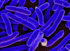 חיידקי E. coli, שאותם בחנו חוקרי האוניברסיטה העברית במחקר הראשון המתואר בכתבה. מקור: NIAID.