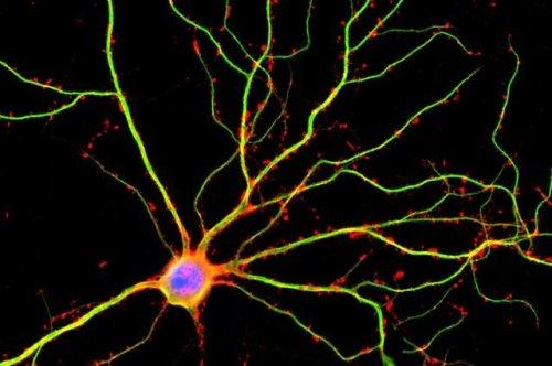 מדענים מאוניברסיטת קליפורניה בלוס אנג'לס - UCLA גילו כי דנדריטים (המוצגים כאן בירוק) אינם רק צינורות פסיביים לזרמים חשמליים בין תאי עצב. צילום: Shelley Halpain / UC בסן דייגו
