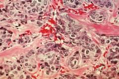 תאי שד סרטניים (בכחול). מקור: NIH.