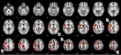 אזורים במוח המציגים שינויים בעלי משמעות סטטיסטית בין חולי סכיזופרניה ובין נבדקים בריאים. כך, למשל, חץ 1 מצביע על איזור בקורטקס המוטורי, וחץ 5 מצביע על ה- precuneus, המעורב בעיבוד מידע חזותי. מקור: IBM.