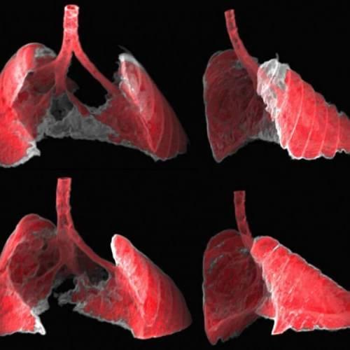 בתמונה שני מבטים (קדמי ואחורי) של הדמיית ריאות של עכבר הלוקה בפיברוזיס (איזורים הצבועים באפור), לפני ואחרי קבלת ננו טיפול ישירות לתאים החולים.
