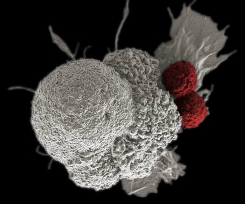 תאי CAR T תוקפים תא סרטני. מקור: Rita Elena Serda, Duncan Comprehensive Cancer Center at Baylor College of Medicine, National Cancer Institute, National Institutes of Health.