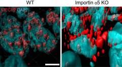 בעכברים מהונדסים גנטית, שחסרים את החלבון אימפורטין אלפא-5 (מימין), מולקולת ה-MeCP2 (באדום) המשפיעה על התנהגות חרדתית, נשארת מחוץ לגרעין (בכחול) של תאי העצב במוח, ולא חודרת לתוכו כמו בעכברים רגילים (משמאל). עיבוד ממוחשב של תמונה אשר צולמה באמצעות מיקרוסקופ קונפוקלי. מכון ויצמן