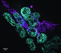 תאי גזע עובריים של עכבר נצפו באמצעות מיקרוסקופ קונפוקלי בעל דיסק מסתובב. רמות החלבון המונע מתאי גזע להתמיין (ירקרק) יורדות בנוכחותן של רמות גבוהות של חלבון אחר (סגול) אשר גורם למיטוכונדריה להתארך
