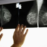 """علماء يكتشفون """"السبب الرئيس"""" لمرض السرطان"""
