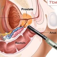إلتهاب البروستاتا : الأسباب الوقاية والعلاج
