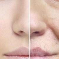 7 خطوات للتخلص من خطوط وتجاعيد الوجه