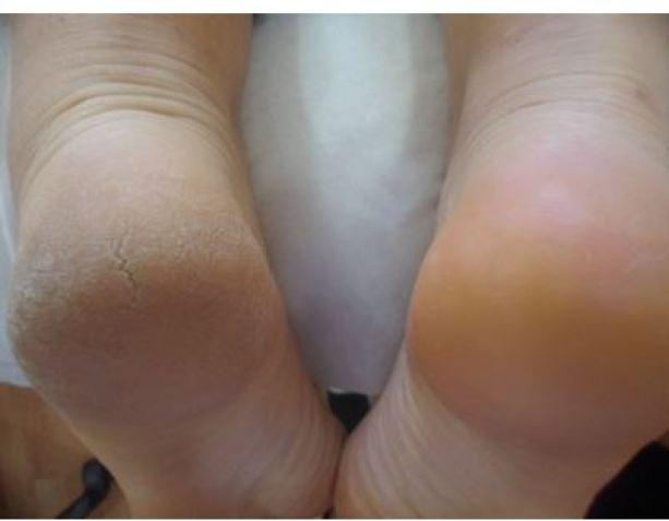 Topuk çatlaklarını yok eden en etkili yöntem