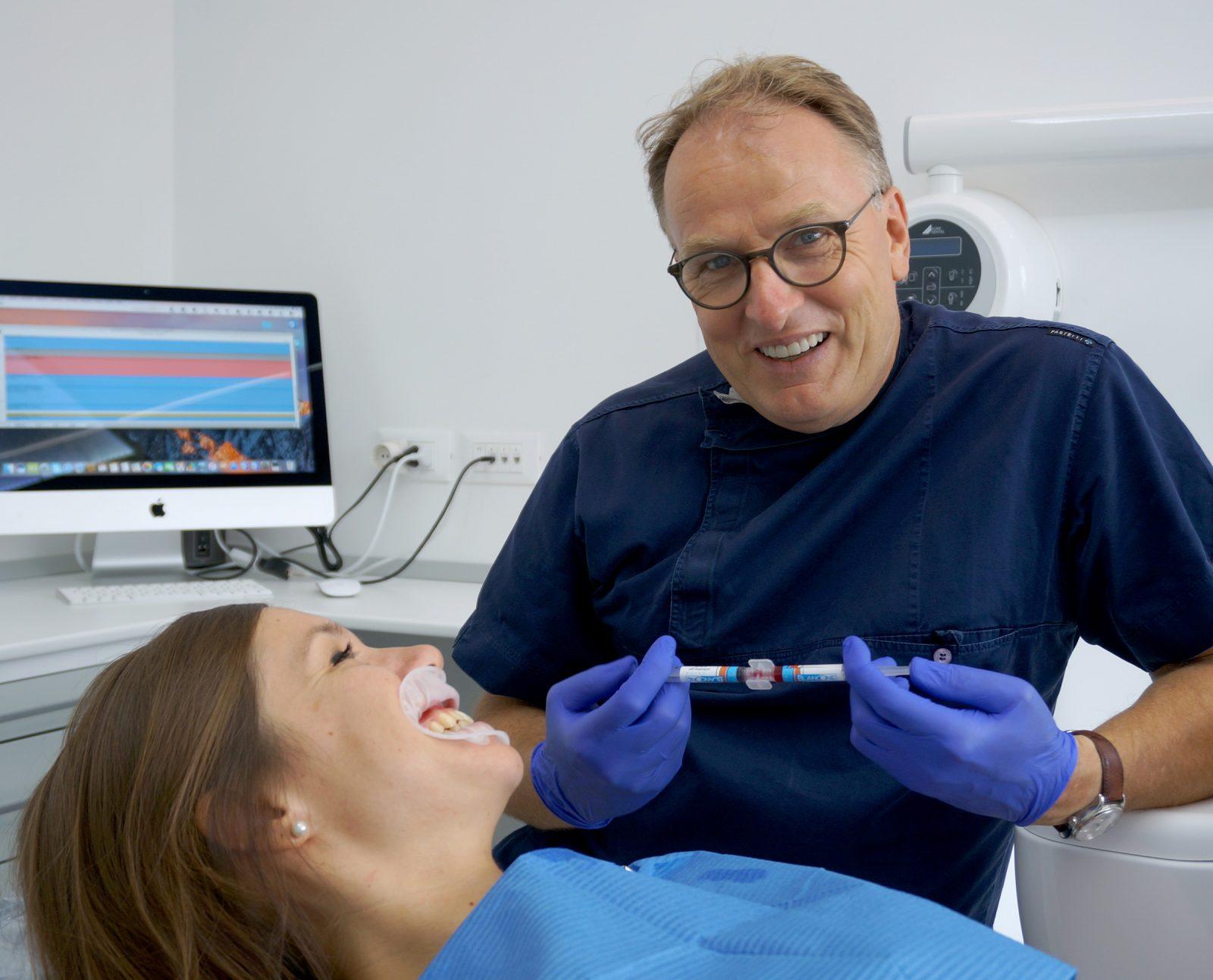 sbiancamento - dott. Hazen dentista Pordenone