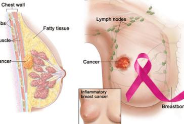 স্তন ক্যান্সার, Breast Cancer