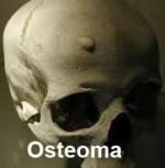 osteoma