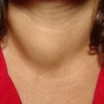 Thyroid_Mass_Jun_08_SQ আপনার প্রয়োজনীয় পোস্ট লিংক। আপনার প্রয়োজনীয় পোস্ট লিংক। Thyroid Mass Jun 08 SQ 300x300