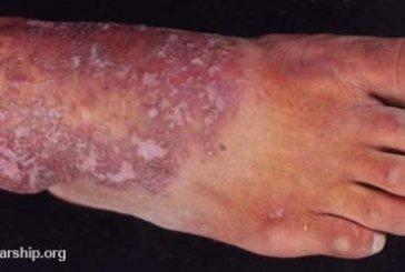 একজিমার (Eczema) চিকিৎসা (টিউটোরিয়াল সহ)