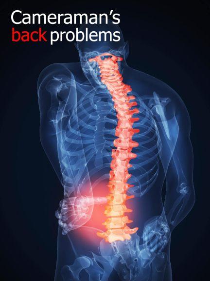 back-probs1
