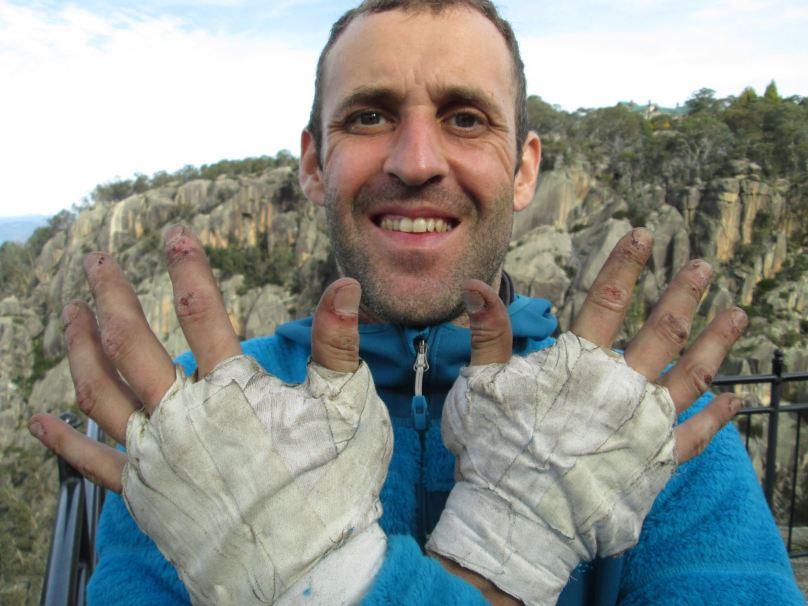 stephane hand trashed