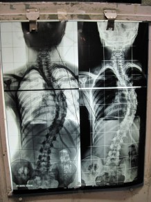 scoliosis xray