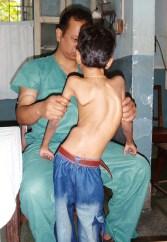 scoliosis patient
