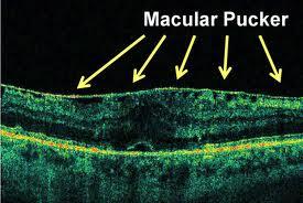 wrinkled retina
