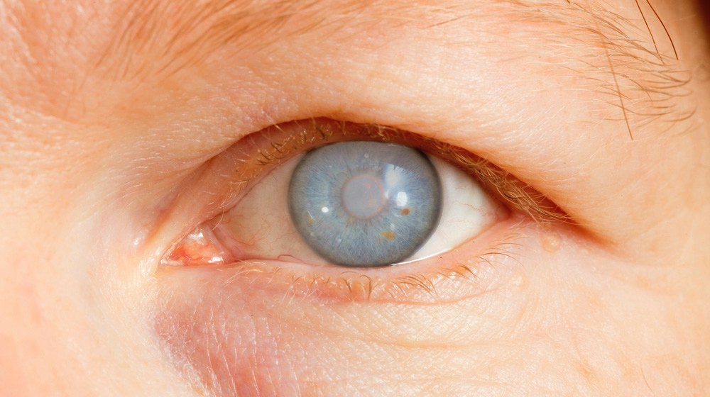 3 Herbal Glaucoma Natural Remedies | Healing The Eys