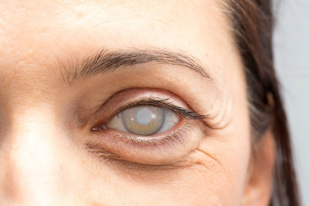 What Is a Cataract? | Are Cataracts Always Visible?