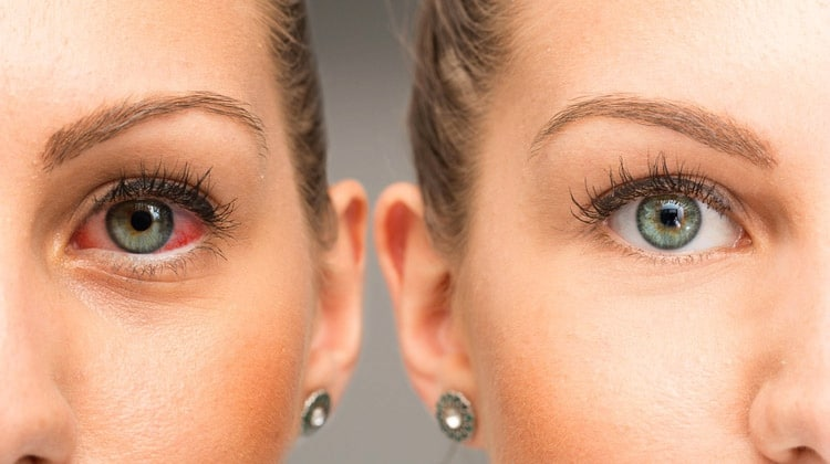 Degenerative Eye Disease: 7 Successful Natural Treatments