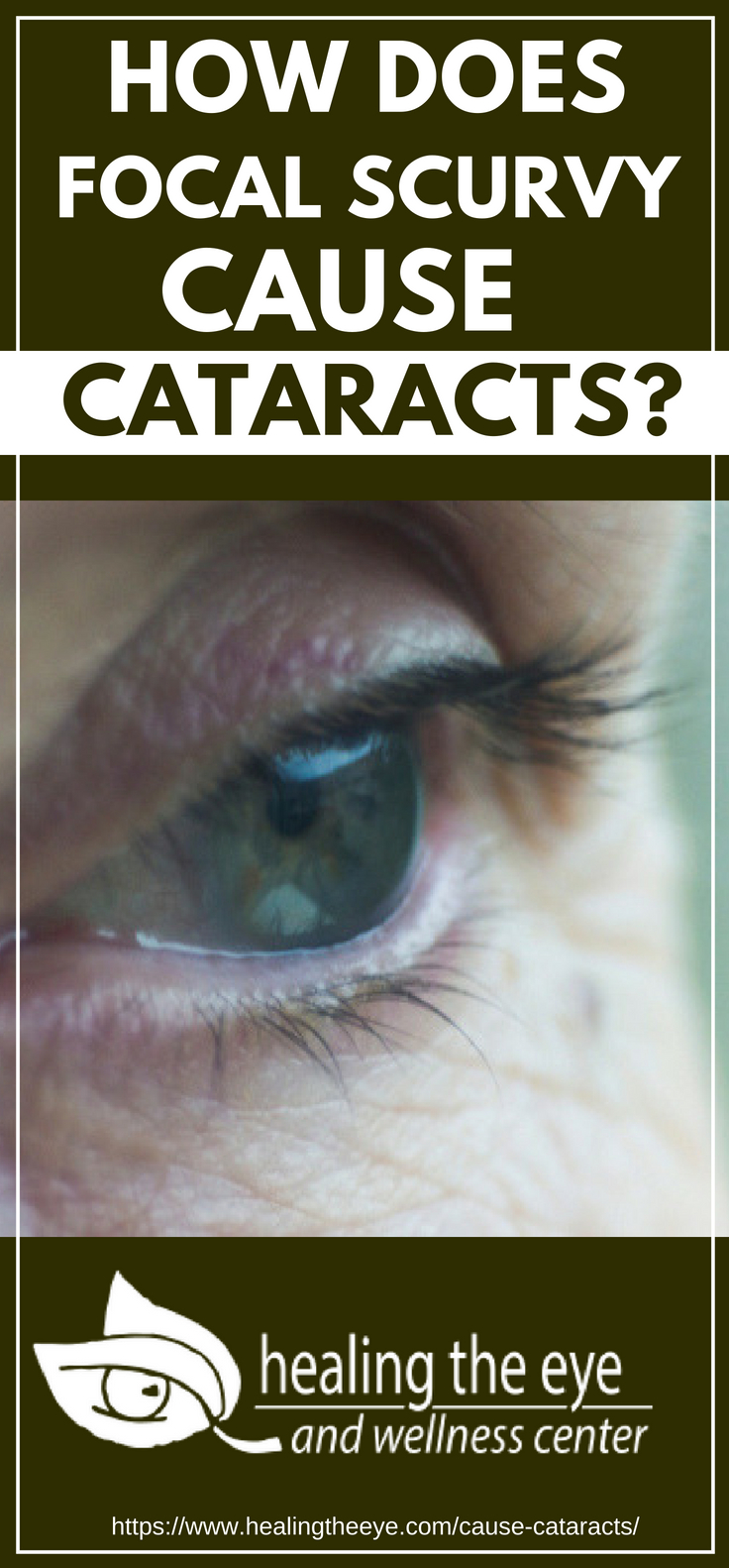 How Does Focal Scurvy Cause Cataracts?