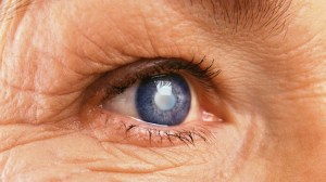 FEATURE | 7 Different Types Of Cataracts