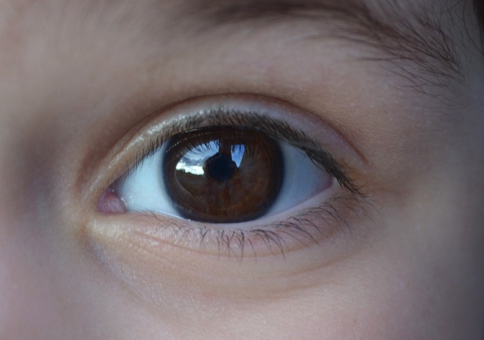 What Are Different Types of Glaucoma ?
