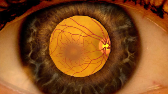 Learn All You Need to Know About the Dangerous Eye Condition Diabetic Macular Edema
