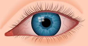 What Treatment Options Do I Have for Relieving Dry Eyes?