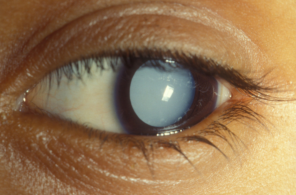 How is Cataract affecting our Lives & How to Prevent its Adverse Effects?