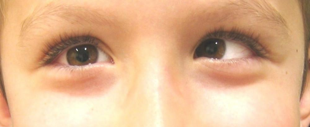 Can Homeopathy Correct The Symptoms Of Lazy Eye Or Amblyopia?
