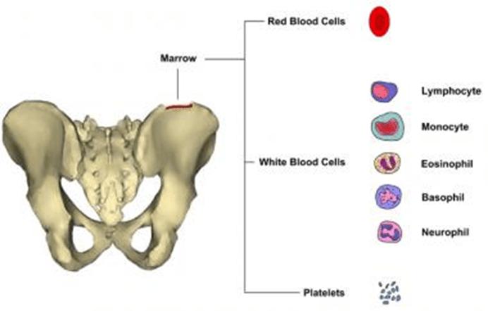 A Guide Through Bone Marrow Transplantation - Healing ...