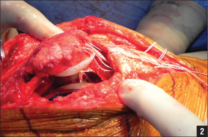 Intraoperative photograph shows the threads of the suture anchors in the proximal fragment passing through the tunnels in the distal fragment and exiting at the inferior pole of the patella.