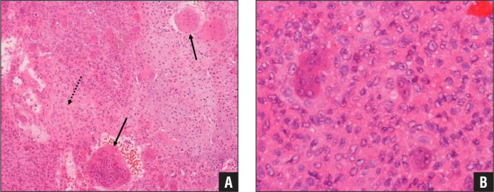 Photomicrograph of biopsy specimen, with solid arrows represent giant cells and dashed arrows represent spindle cells (original magnification, ×100) (A). Photomicrograph showing pleomorphic stromal cells in cartilaginous matrix (original magnification, ×400) (B).