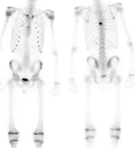 Figure 2. Whole body technetium bone scan demonstrates radiotracer uptake in the left pedicle of T8.