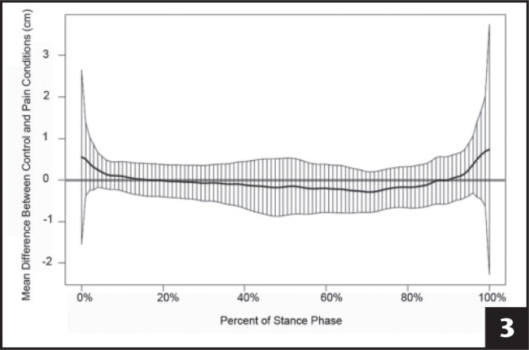 Results from the functional analysis used to compare medial–lateral center of pressure position during walking between the control and pain conditions. The bolded black function line indicates mean difference in medial–lateral center of pressure position, for each percentage of the stance phase of gait. The vertical black lines represent corresponding 95% confidence intervals for each percentage of the stance phase of gait. The confidence intervals overlapped the zero line at every percentage of the stance phase of gait; this indicates no statistical difference between the control and pain conditions for medial–lateral center of pressure position at any percentage of the stance phase of gait.