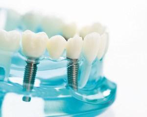 Great advances for dental implants
