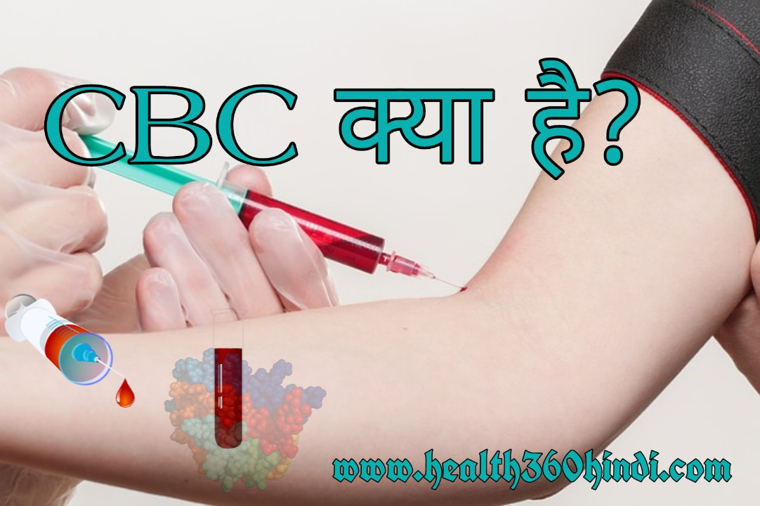 CBC(पूर्ण रकत गणना) क्या है? – What is CBC Test in Hindi
