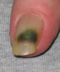 Pseudomonas Traditional Treatments Because Of The Distortion And Color Changes Nail Fungal Infections