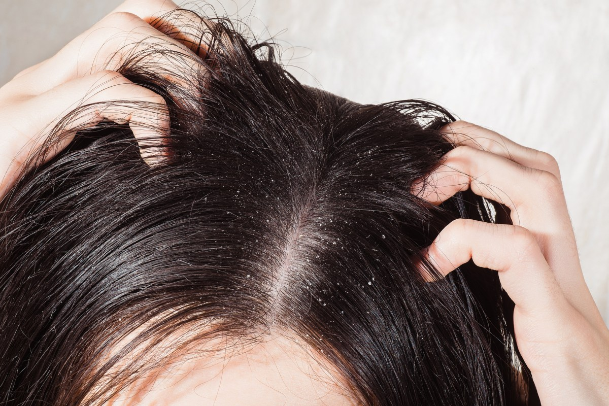 5 Homemade Dandruff Treatments that really works