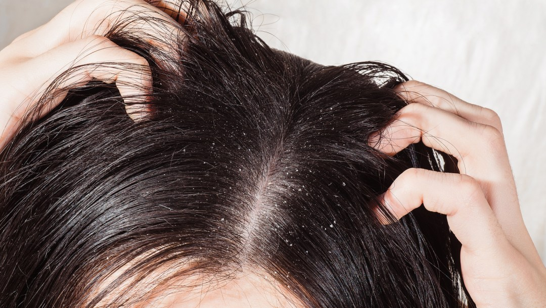 Natural Dandruff Treatment