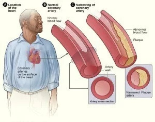 cholesterol and the body