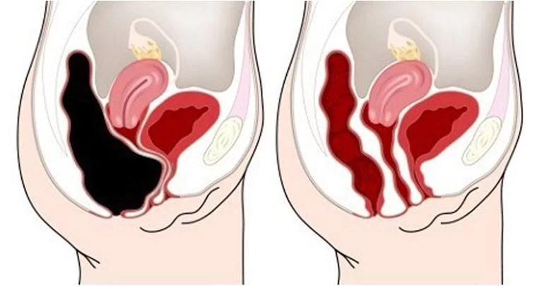 How to Remove 20 Pounds of Toxic Waste from Your Colon - Recipe
