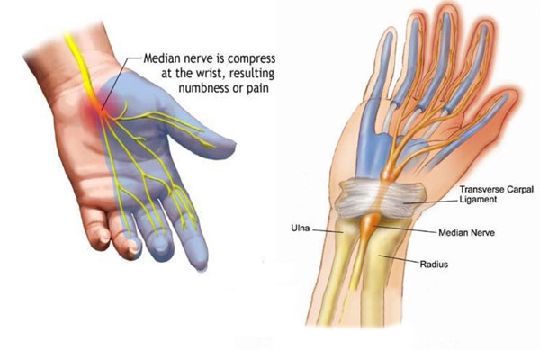 carpal_tunnel_diagram_600_px_03
