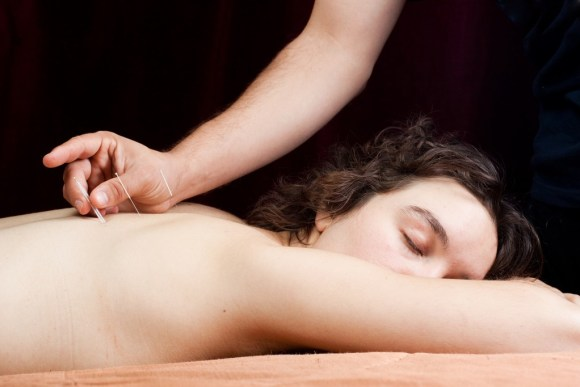 healing back pain with acupuncture