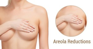 Buying Areola Reduction
