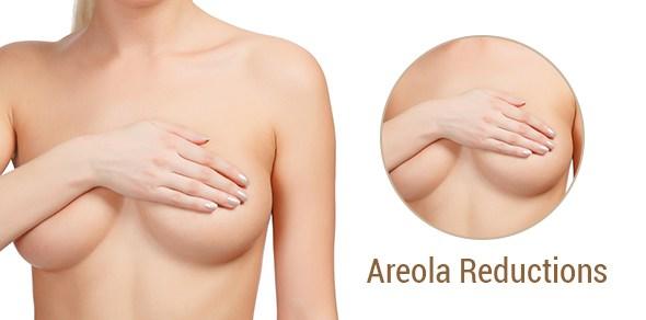 Buying Areola Reduction